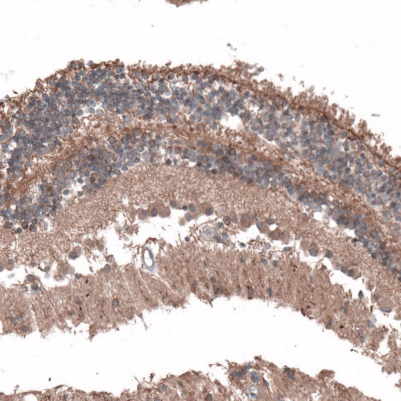 Immunohistochemistry (Formalin/PFA-fixed paraffin-embedded sections) - Anti-C8orf37 antibody (ab121796)