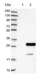Western blot - Anti-NXT2 antibody (ab121797)