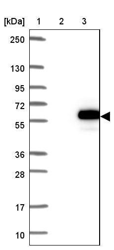 Western blot - Anti-ZNF704 antibody (ab121804)
