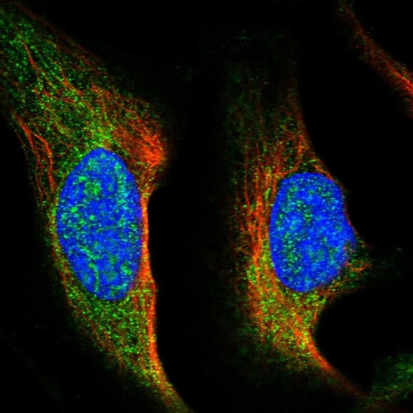 Immunocytochemistry/ Immunofluorescence - Anti-FLJ36733 antibody (ab121805)