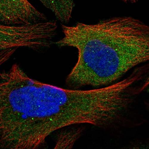 Immunocytochemistry/ Immunofluorescence - Anti-TRAF6BP/TAX1BP1 antibody (ab121812)