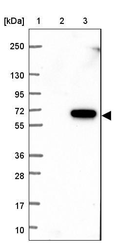 Western blot - Anti-CBAP antibody (ab121813)