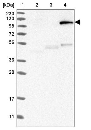 Western blot - Anti-MAN1 antibody (ab121854)