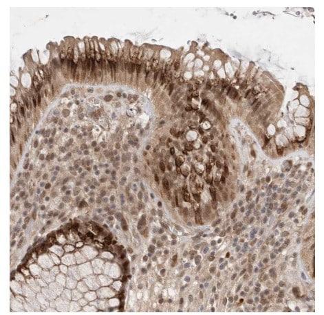 Immunohistochemistry (Formalin/PFA-fixed paraffin-embedded sections) - Anti-MAN1 antibody (ab121854)