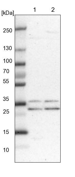 Western blot - Anti-PCTP-L antibody (ab121876)