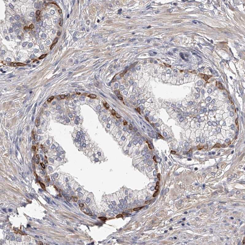 Immunohistochemistry (Formalin/PFA-fixed paraffin-embedded sections) - Anti-Tenascin-N antibody (ab121887)
