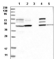 Western blot - Anti-GCNT2 antibody (ab121888)