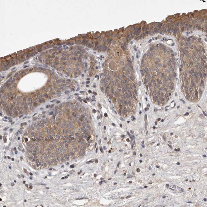 Immunohistochemistry (Formalin/PFA-fixed paraffin-embedded sections) - Anti-UBE3D antibody (ab121927)