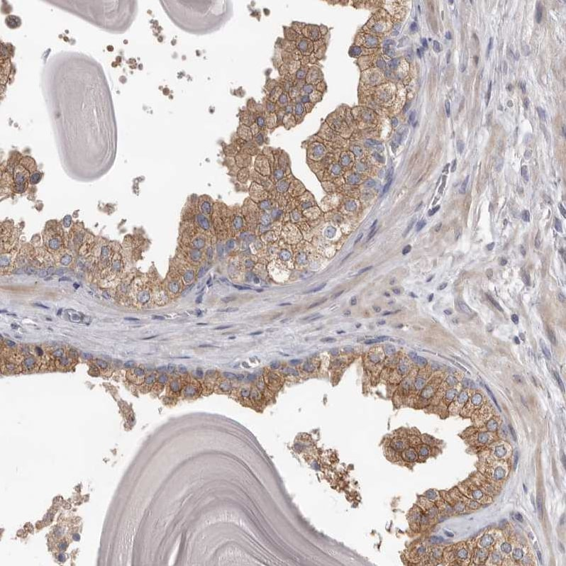 Immunohistochemistry (Formalin/PFA-fixed paraffin-embedded sections) - Anti-HINT3 antibody (ab121960)