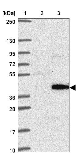 Western blot - Anti-Marapsin2 antibody (ab121968)