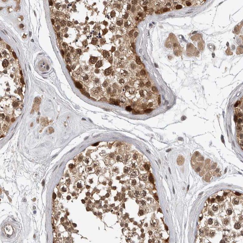 Immunohistochemistry (Formalin/PFA-fixed paraffin-embedded sections) - Anti-HENMT1 antibody (ab121991)