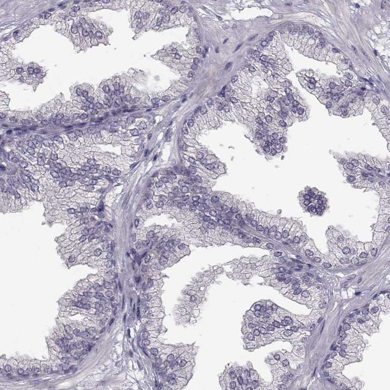 Immunohistochemistry (Formalin/PFA-fixed paraffin-embedded sections) - Anti-SPAG17 antibody (ab122008)