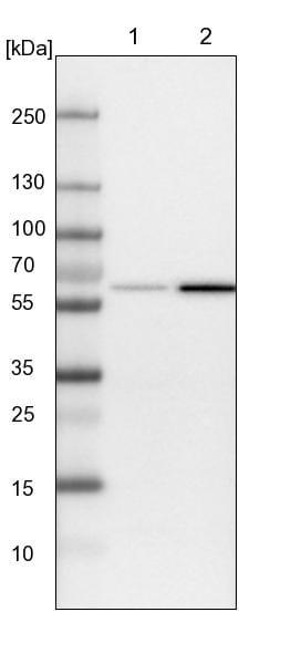 Western blot - Anti-SAMD3 antibody (ab122028)