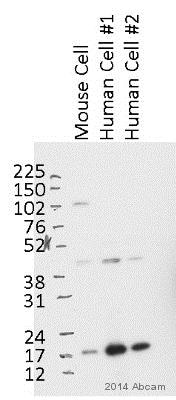 Western blot - Anti-GAPR-1 antibody (ab122059)