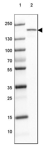 Western blot - Anti-MYOM3 antibody (ab122081)