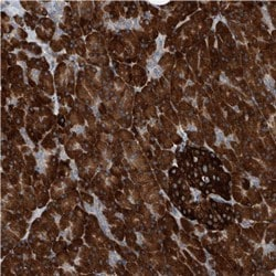 Immunohistochemistry (Formalin/PFA-fixed paraffin-embedded sections) - Anti-IRIP antibody (ab122098)