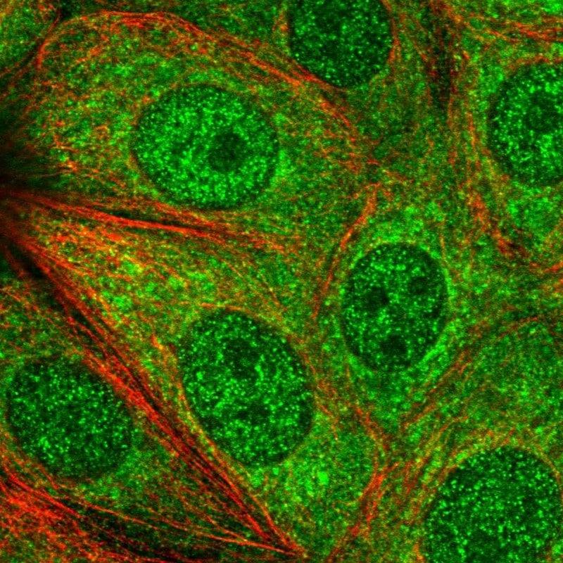 Immunocytochemistry/ Immunofluorescence - Anti-PGGT1B antibody (ab122122)