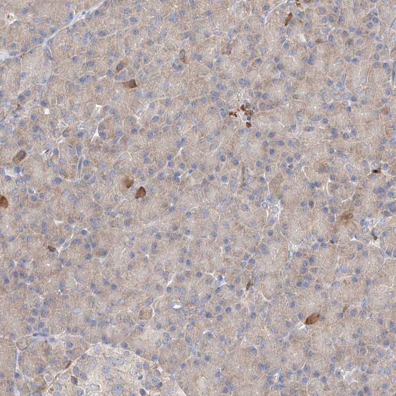 Immunohistochemistry (Formalin/PFA-fixed paraffin-embedded sections) - Anti-PGGT1B antibody (ab122122)
