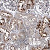 Immunohistochemistry (Formalin/PFA-fixed paraffin-embedded sections) - Anti-HEATR6 antibody (ab122131)