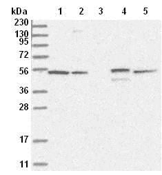 Western blot - Anti-RSPH4A antibody (ab122157)