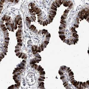 Immunohistochemistry (Formalin/PFA-fixed paraffin-embedded sections) - Anti-RSPH4A antibody (ab122159)