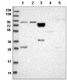 Western blot - Anti-RSPH4A antibody (ab122159)