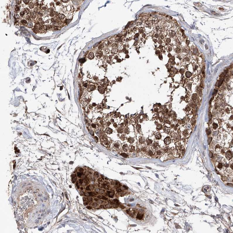 Immunohistochemistry (Formalin/PFA-fixed paraffin-embedded sections) - Anti-C6orf57 antibody (ab122196)