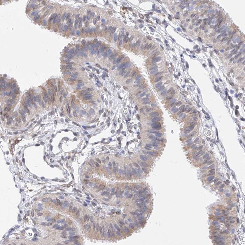 Immunohistochemistry (Formalin/PFA-fixed paraffin-embedded sections) - Anti-LCLAT1 antibody (ab122197)