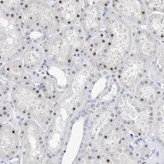 Immunohistochemistry (Formalin/PFA-fixed paraffin-embedded sections) - Anti-TSPYL1 antibody (ab122200)