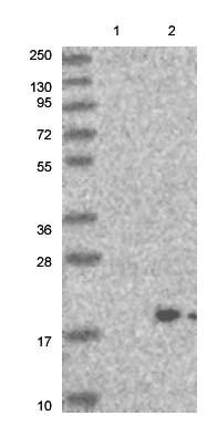 Western blot - Anti-EMRE antibody (ab122209)