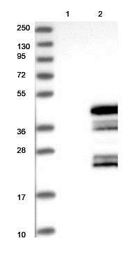Western blot - Anti-C6orf106 antibody (ab122211)