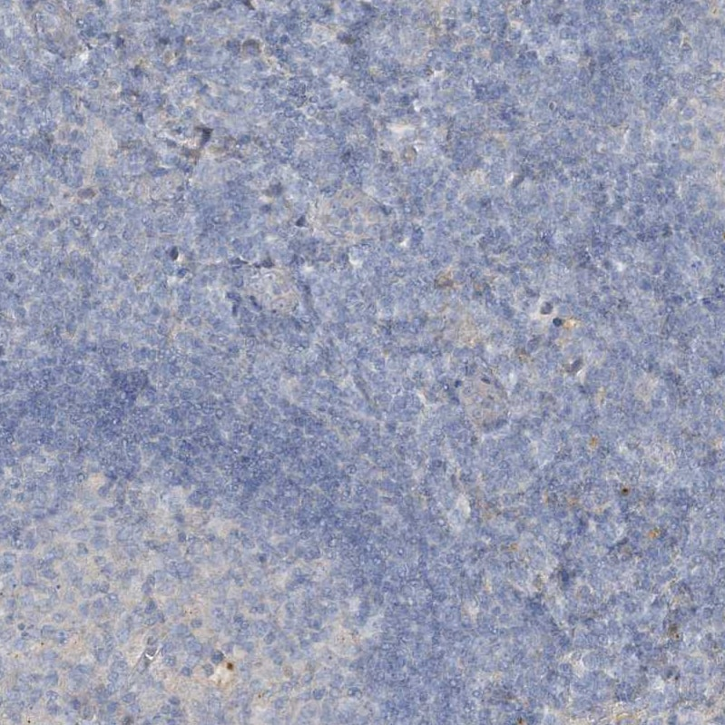 Immunohistochemistry (Formalin/PFA-fixed paraffin-embedded sections) - Anti-SLC4A10 antibody (ab122229)