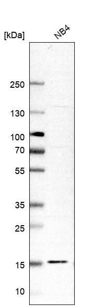 Western blot - Anti-RPL34 antibody (ab122255)