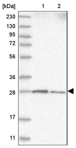 Western blot - Anti-RABL3 antibody (ab122257)