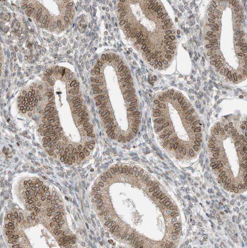 Immunohistochemistry (Formalin/PFA-fixed paraffin-embedded sections) - Anti-RABL3 antibody (ab122257)