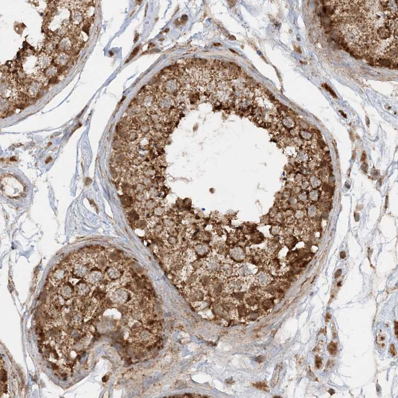 Immunohistochemistry (Formalin/PFA-fixed paraffin-embedded sections) - Anti-NDUF3 antibody (ab122270)