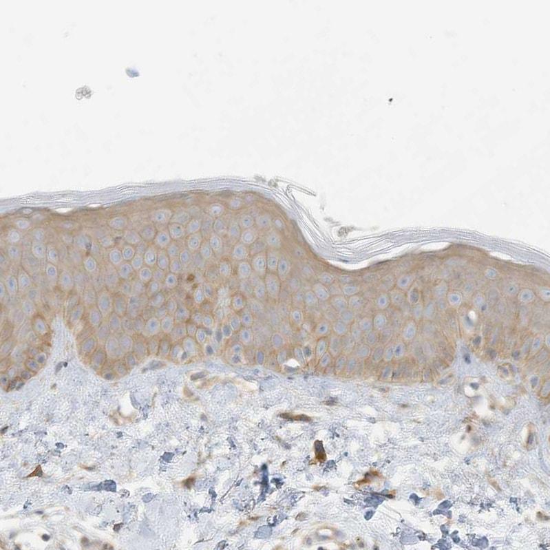 Immunohistochemistry (Formalin/PFA-fixed paraffin-embedded sections) - Anti-ADAT2 antibody (ab122280)