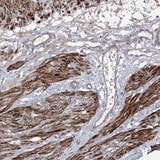 Immunohistochemistry (Formalin/PFA-fixed paraffin-embedded sections) - Anti-ZSWIM6 antibody (ab122301)