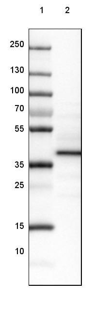 Western blot - Anti-Leiomodin-3 antibody (ab122305)