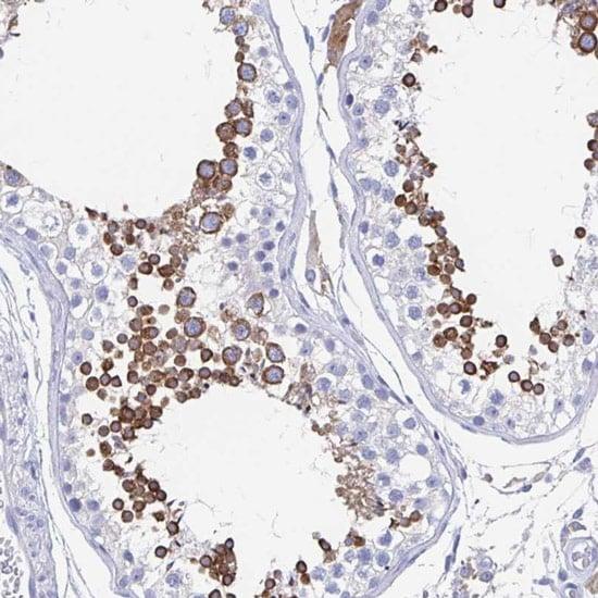 Immunohistochemistry (Formalin/PFA-fixed paraffin-embedded sections) - Anti-SHCBP1L antibody (ab122310)