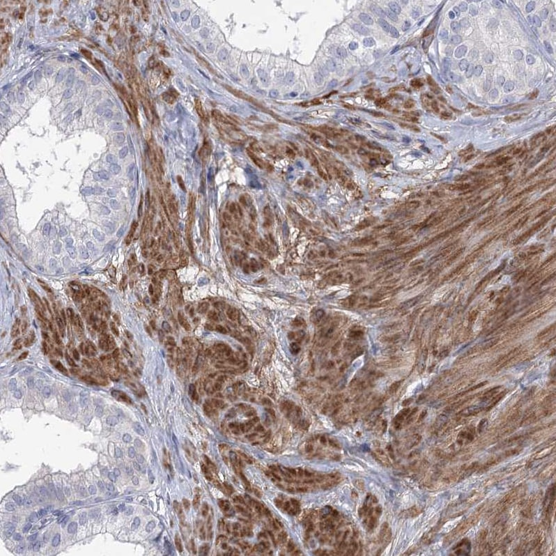 Immunohistochemistry (Formalin/PFA-fixed paraffin-embedded sections) - Anti-ANKRD23 antibody (ab122320)
