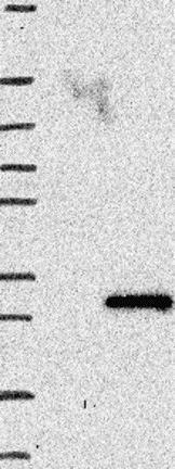 Western blot - Anti-APC15 antibody (ab122349)