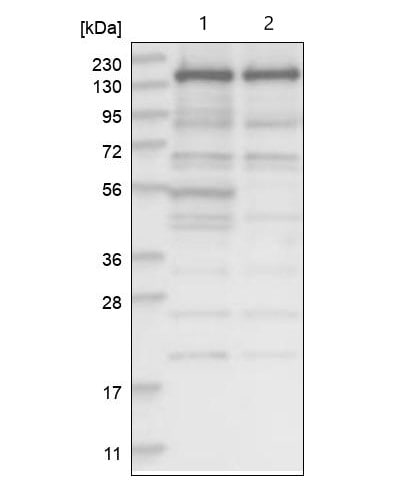 Western blot - Anti-SCC112 antibody (ab122352)