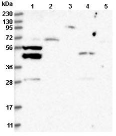 Western blot - Anti-P2Y10 antibody (ab122359)