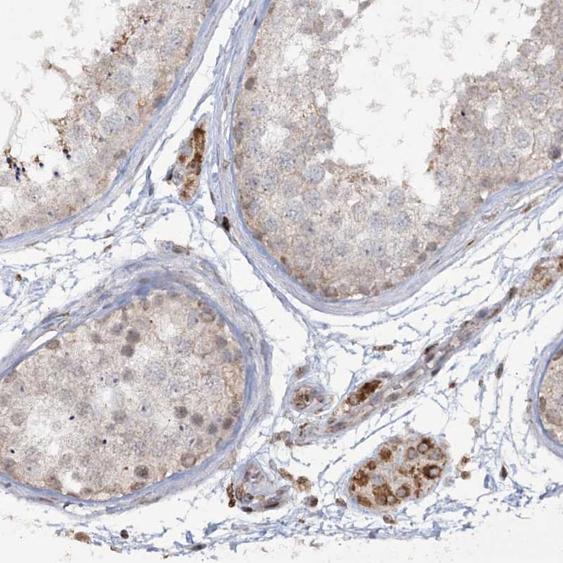 Immunohistochemistry (Formalin/PFA-fixed paraffin-embedded sections) - Anti-TTC7A antibody (ab122363)