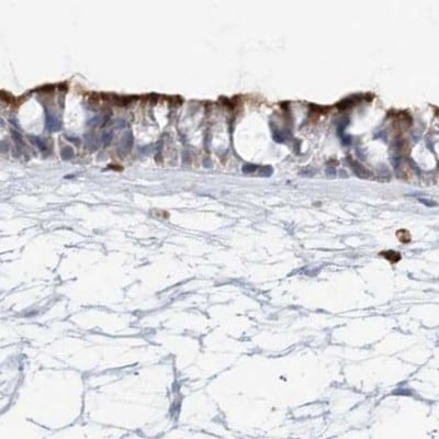 Immunohistochemistry (Formalin/PFA-fixed paraffin-embedded sections) - Anti-DNAH5 antibody (ab122391)