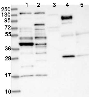 Western blot - Anti-CCDC34/L15 antibody (ab122396)