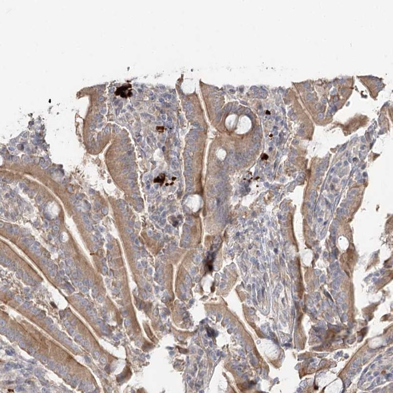 Immunohistochemistry (Formalin/PFA-fixed paraffin-embedded sections) - Anti-GC-C antibody (ab122404)