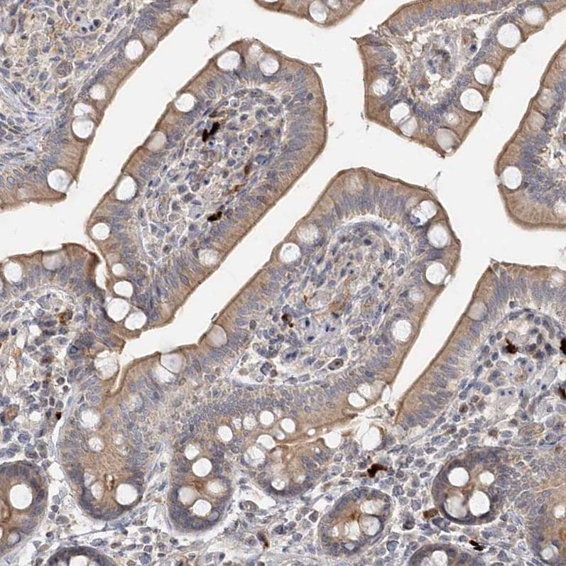 Immunohistochemistry (Formalin/PFA-fixed paraffin-embedded sections) - Anti-GC-C antibody (ab122404)
