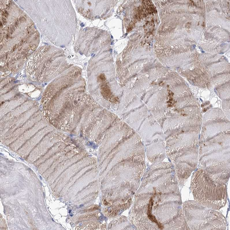Immunohistochemistry (Formalin/PFA-fixed paraffin-embedded sections) - Anti-NRAP antibody (ab122427)